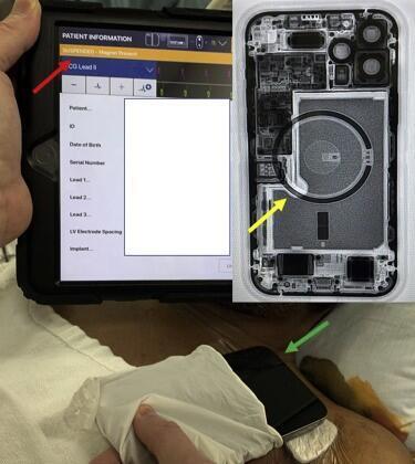 مبرمج الجهاز الذي يظهر تعطيل جهاز تنظيم ضربات القلب  (شريط برتقالي السهم الأحمر)  ايفون 12 وضع على صدر المريض (السهم الأخضر) صورة  ايفون 12 تظهر مجموعة المغناطيس الدائرية (السهم الأصفر).