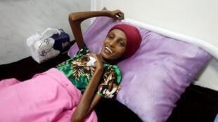 سعيدة أحمد بغيلي ولها من العمر 18،أصيبت بسوء تغذية حادة، اليمن (17-11-2016)