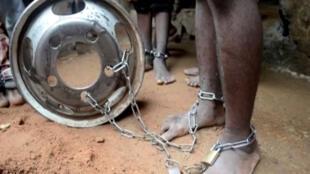 صورة لتلميذ تعرض للتعذيب في مدرسة قرآنية شمال نيجيريا