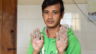 التقطت هذه الصورة بعد العملية الجراحية لأبو بجاندر في مستشفى كلية الطب في دكا يوم 25 يناير 2018