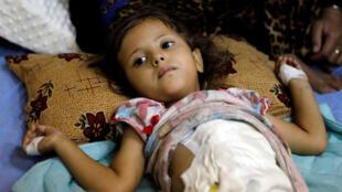 """طفلة عراقية مصابة بجروح نتيجة هجوم بشنه مسلحون من تنظيم """" الدولة الإسلامية"""" في غرب الموصل"""