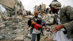 بثينة، الناجية الوحيدة من عائلتها التي قضت بغارات التحالف، صنعاء (26-08-2017)