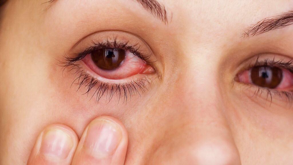 problèmes oculaires