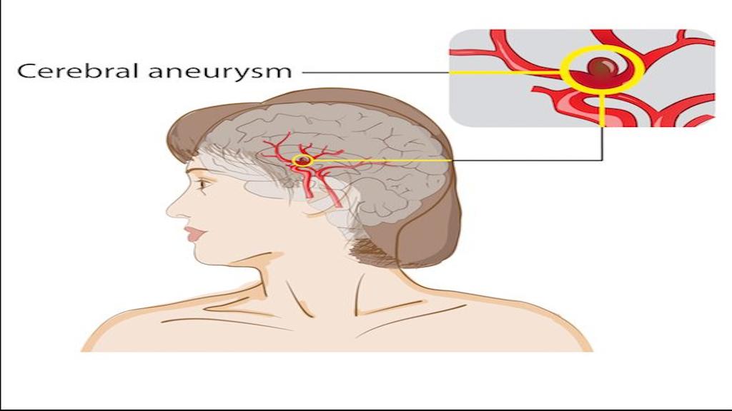 الحادث الوعائي الدماغي