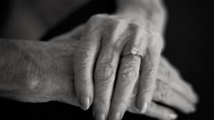 هل يمكن للدواء المرخص به أخيرا ضد ألزهايمر في الولايات المتحدة من علاج المرضى؟