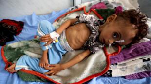 طفل يمني