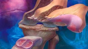 أمراض الركبة